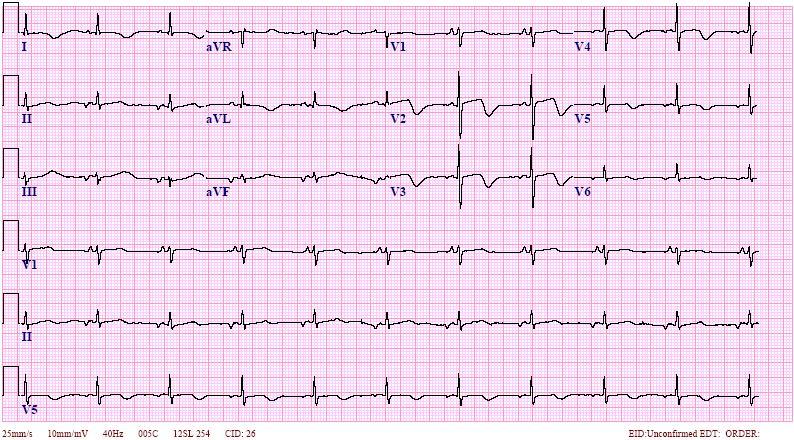 EctopicAtrialBradycardiaECG
