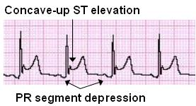 St elevation criteria