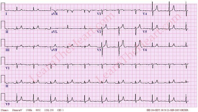 Hyperkalemia-ECG-2