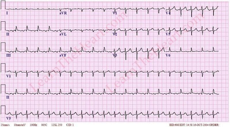 AtrialTachycardiaECG