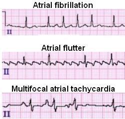 Multifocal Atrial Tachycardia Mat Ecg Review Criteria