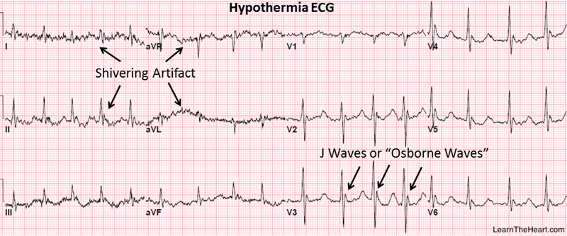 Best resources to learn ECG? | Student Doctor Network