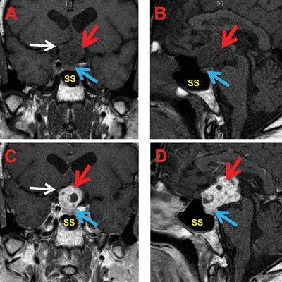 MRI brain with and without contrast. Pre-contrast coronal (A) and pre-contrast sagittal (B) views show a large heterogeneous 2.7 cm x 2.8 cm x 3.6 cm mass (red arrow) within the suprasellar compartment with extension superiorly into the third ventricle and inferiorly into the sella with mass effect on the superior margin of the pituitary gland (blue arrow). The pituitary infundibulum was not well visualized. There was marked compression and superior displacement of the optic chiasm and the intracranial portions of the optic nerves (white arrow). Sphenoid sinus (SS). Post-gadolinium contrast coronal (C) and post-contrast sagittal (D) views showing the suprasellar mass (red arrow) was mildly lobulated, predominantly hypointense on T1-weight images with relatively intense enhancement after IV gadolinium of the solid components of the mass. Multifocal areas of hypo-enhancement seen within the lesion suggestive of cystic necrosis.