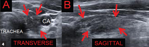 Ultrasound of the thyroid: Ultrasound confirms that both lobes of the thyroid were present in the lower anterior neck. The thyroid was normal in size but was hypoechoic and heterogeneous, consistent with chronic thyroiditis. A. Left lobe, transverse. B. Left lobe, sagittal. Reprinted with permission from: Stephanie L. Lee, MD, PhD