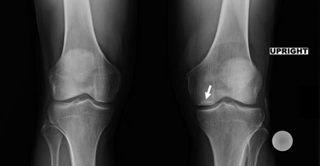 Figure 2. A preoperative radiograph in the Rosenberg view indicates the presence of a small area of osteonecrosis on the medial femoral condyle of the left knee.