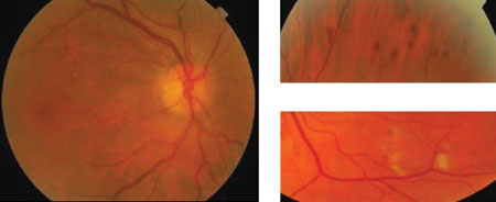 Patient with type 2 diabetes presents with mild unilateral ...