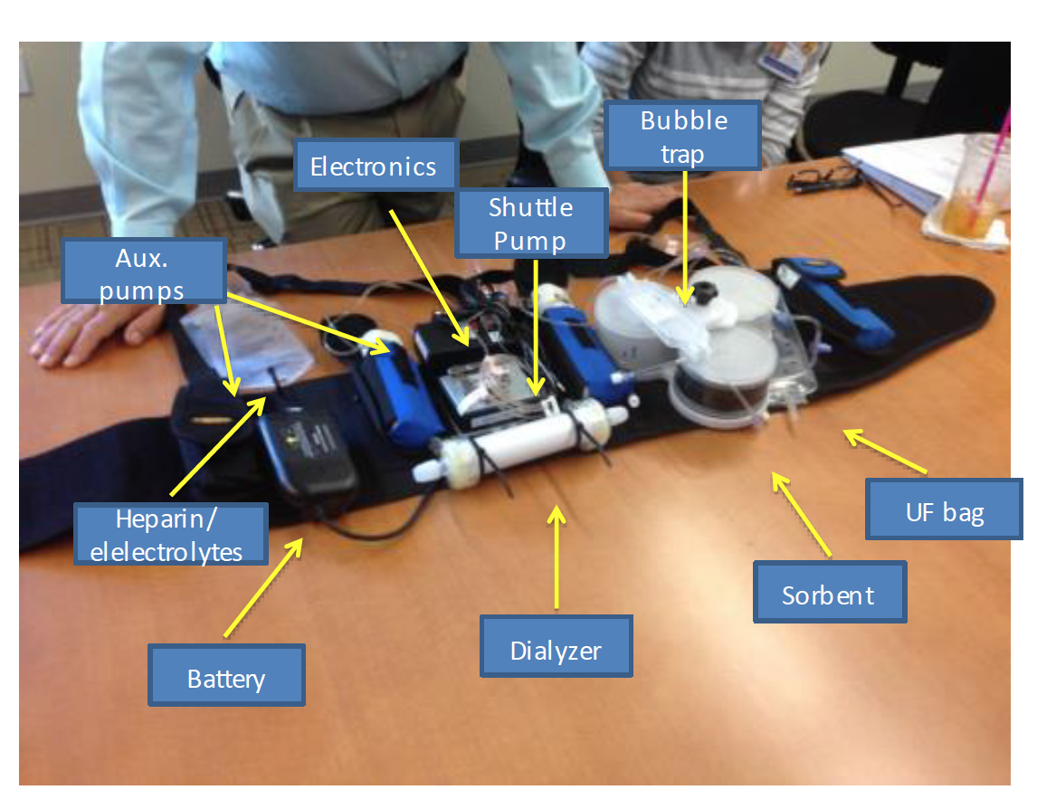 The wearable artificial kidney. Photo from NKF slides