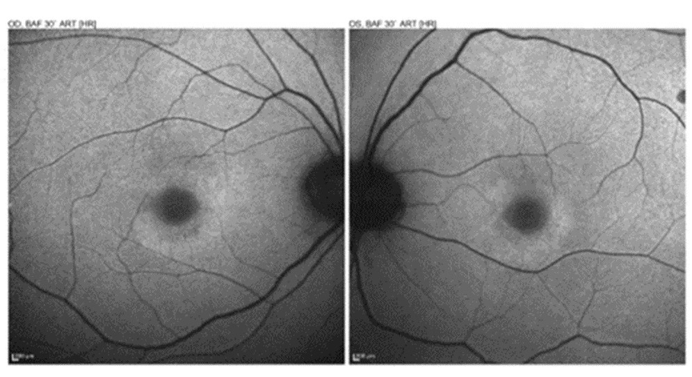 Note the circular alteration of the autofluorescence signal return in the area of toxicity. Source: Doug Rett, OD, FAAO